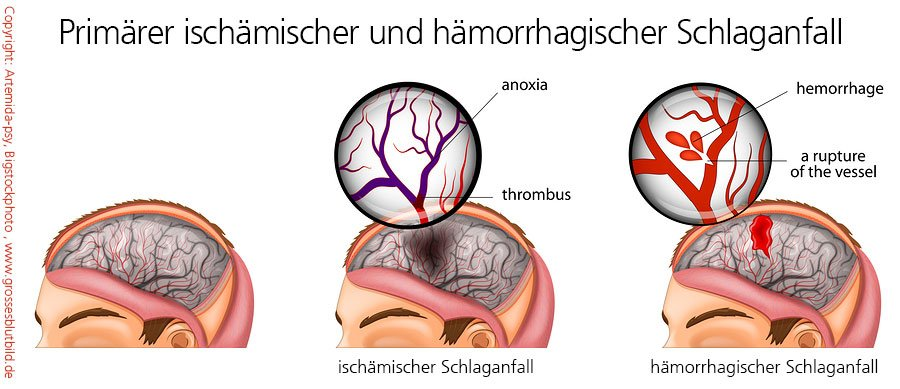 ischämischer und hämorrhagischer Schlaganfall