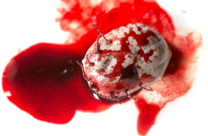 Blutwerte bei Borreliose