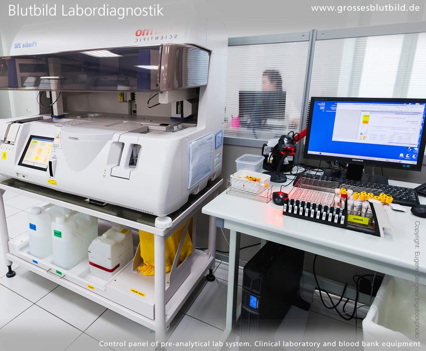 Blutbild Einheiten im Labor