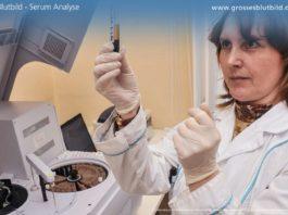 Blutbild, Blutwerte Serum Analyse