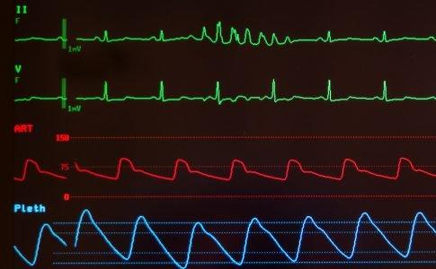 Beschleunigter Herzschlag, Herzklopfen und Herzrasen (Tachykardie)
