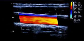Das Duplex-Verfahren ist ein spezieller Bereich der Doppler-Sonografie