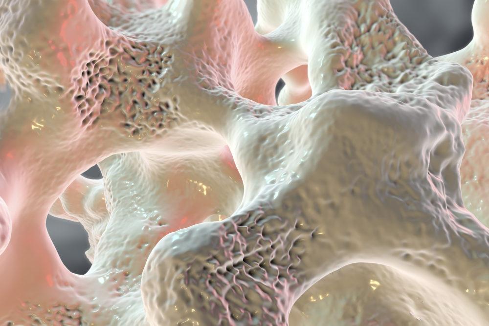Blutwerte Osteoporose