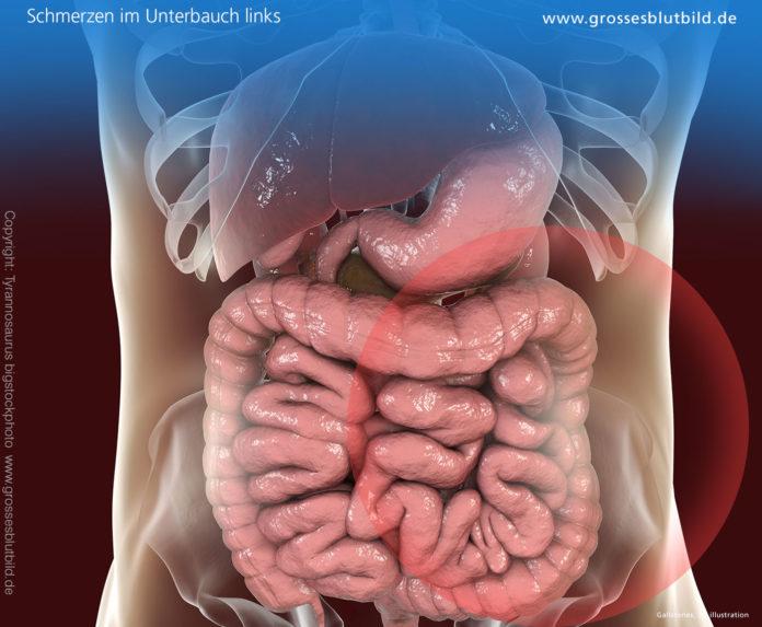 Bauchfellentzündung
