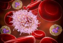 Leukämie Blutzellen