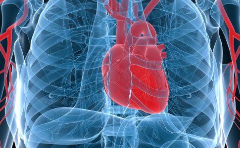 Herz, Herzinfarkt