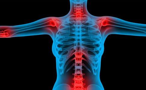 Arthalgie Gelenkschmerzen