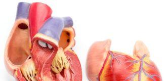Herzmuskelschwäche