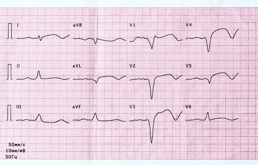 Herzinfarkt: Ursachen, Symptome und Behandlung ( Myokardinfarkt )