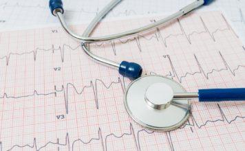 Angina pectoris und den Blutdruck zu wissen