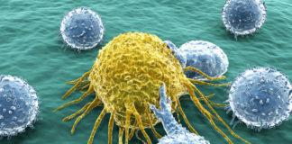 Krebszellen Darm
