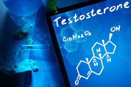 Ursachen für erhöhte Testosteronwerte