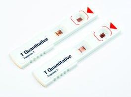 Troponin T test