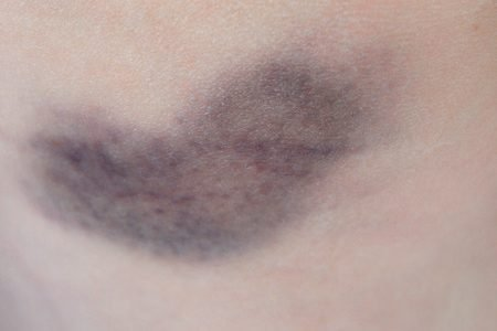 Blauer Fleck nach der Blutabnahme, Schmerze