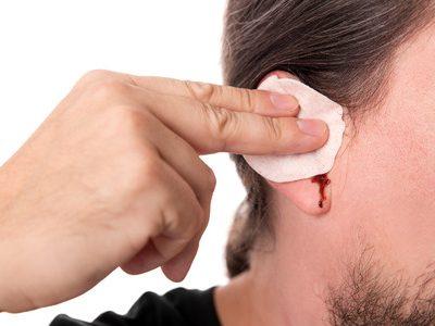 Blut im Ohr