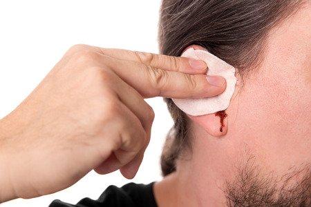 Ohrenbluten Ursachen Von Blut Im Ohr Ursachen Und Behandlung