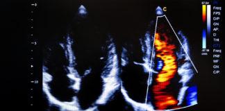 Bild aus der Echokardiografie