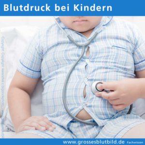 Blutdruckwerte beim Kind, Bluthochdruck bei Kindern