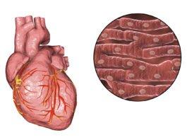 Dilatative Kardiomyopathie: Wie ist der Verlauf