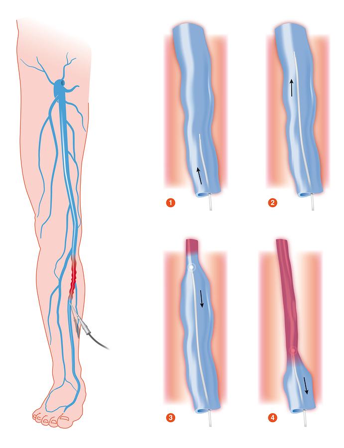 Blutstau in den Beinen