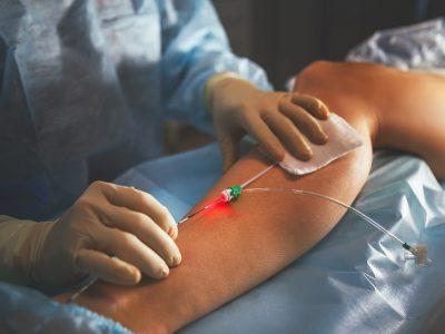 Gefäßchirurgie bei Krampfadern