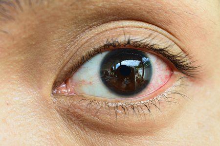 Blut im Auge