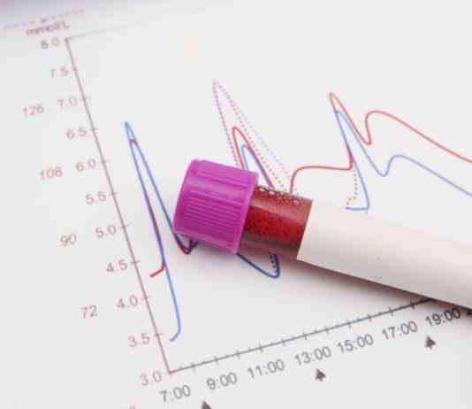 Blutwerte im Kleinen Blutbild und Grossen Blutbild