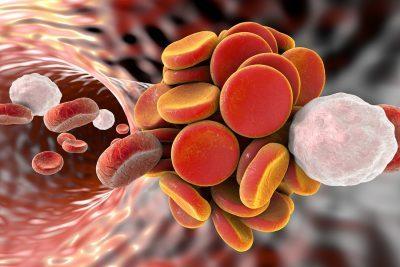 Blutgerinnsel