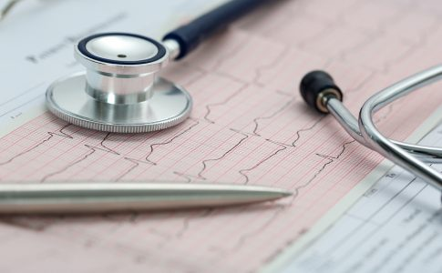 Herzrhythmusstörungen Symptome