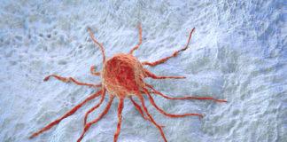 Magenkrebs Symptome Anzeichen