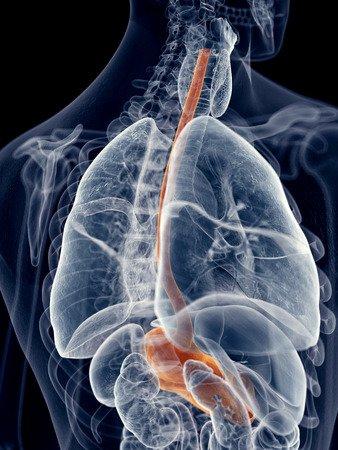 Entzündung der Speiseröhre Symptome