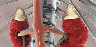 3D Ansicht Niere