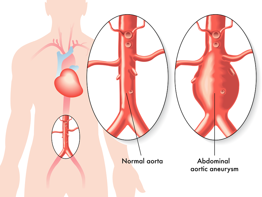 Aneurysma an der Bauchschlagader