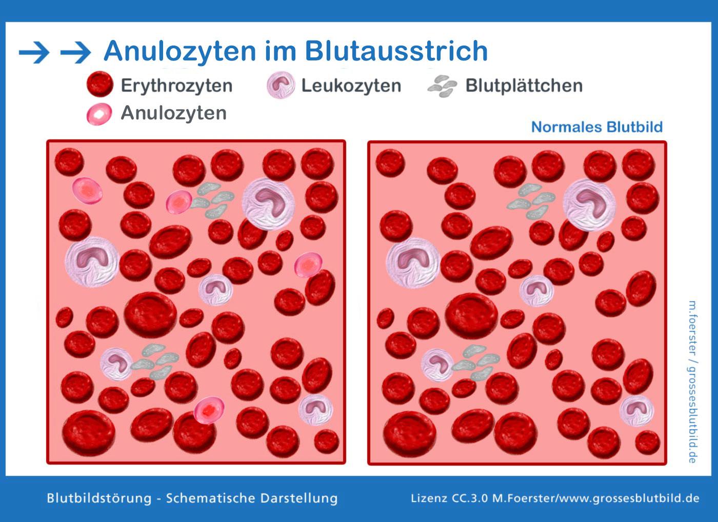 Anulozyt en im Blutbild