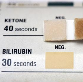 Bilirubin Im Urin Wert Und Bedeutung