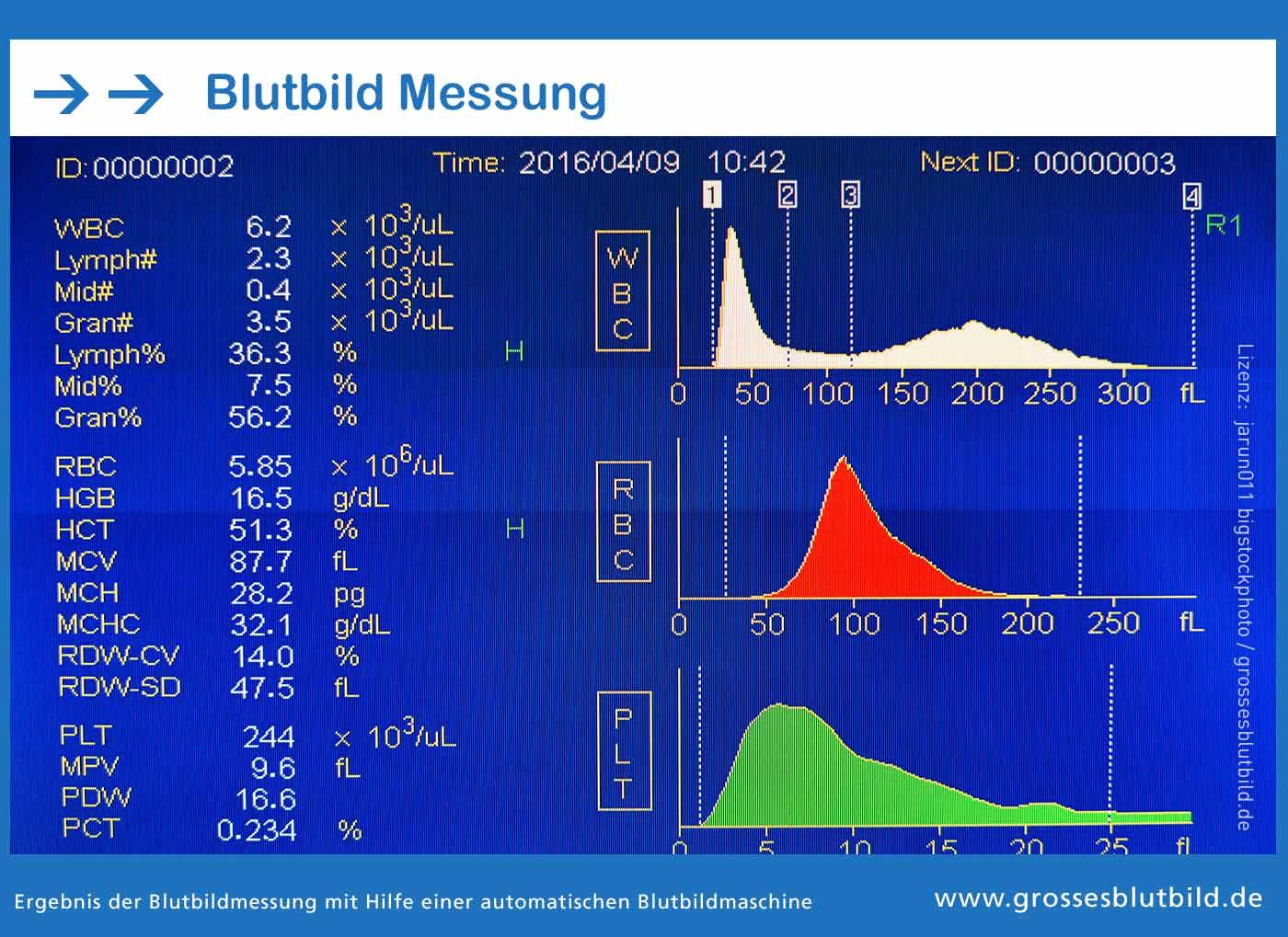 Grosses Blutbild Messung im hämatologischen Labor