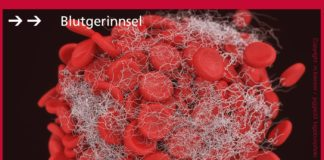 Bildung von Blutgerinnseln