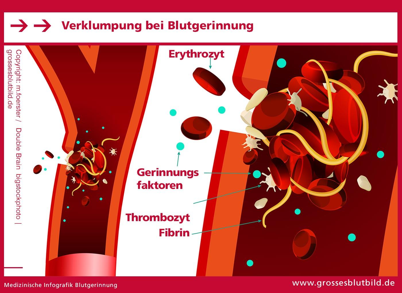 Bildung von Blutgerinnseln mit Blutgerinnung