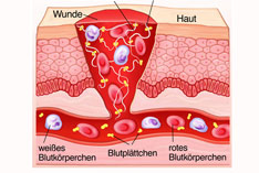 Eine anschauliche Grafik der Gerinnung der Blutzellen