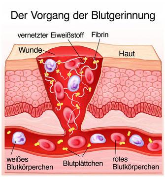 Grafik des medizinischen Vorganges