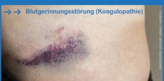 Blutgerinnungsstörung