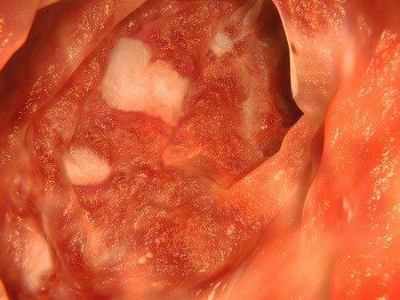 Colitis ulcerosa im Darm