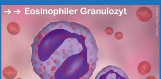 Eosinophiler Granulozyt
