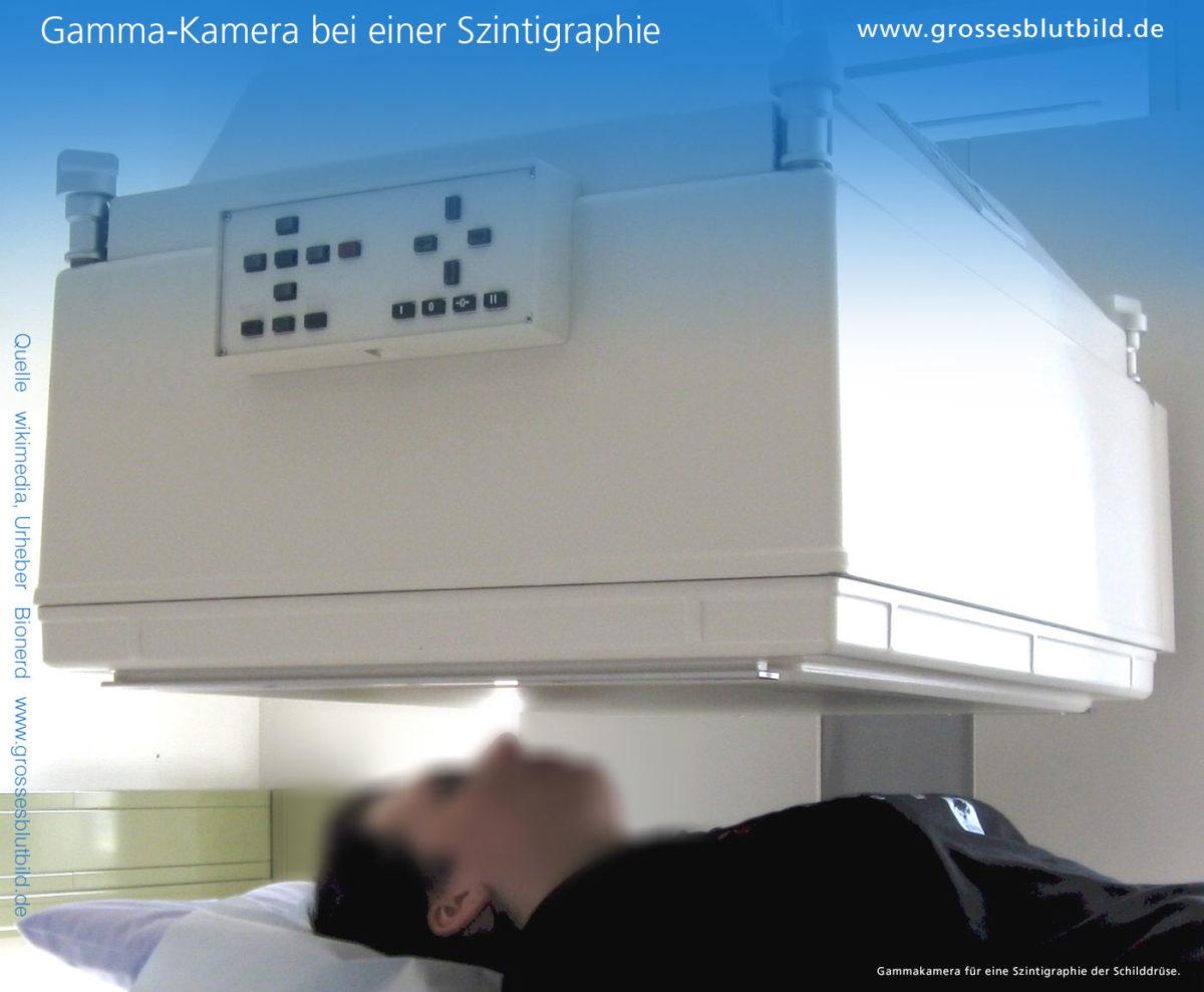 Szintigraphie Gamma Kamera,
