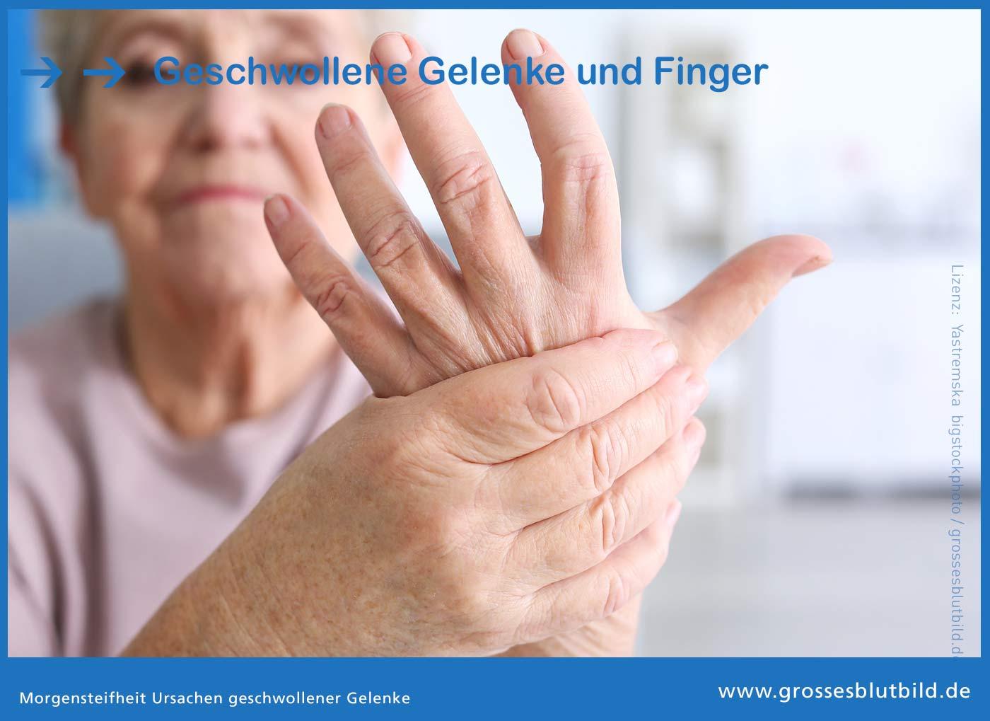 Geschwollene Gelenke und Finger