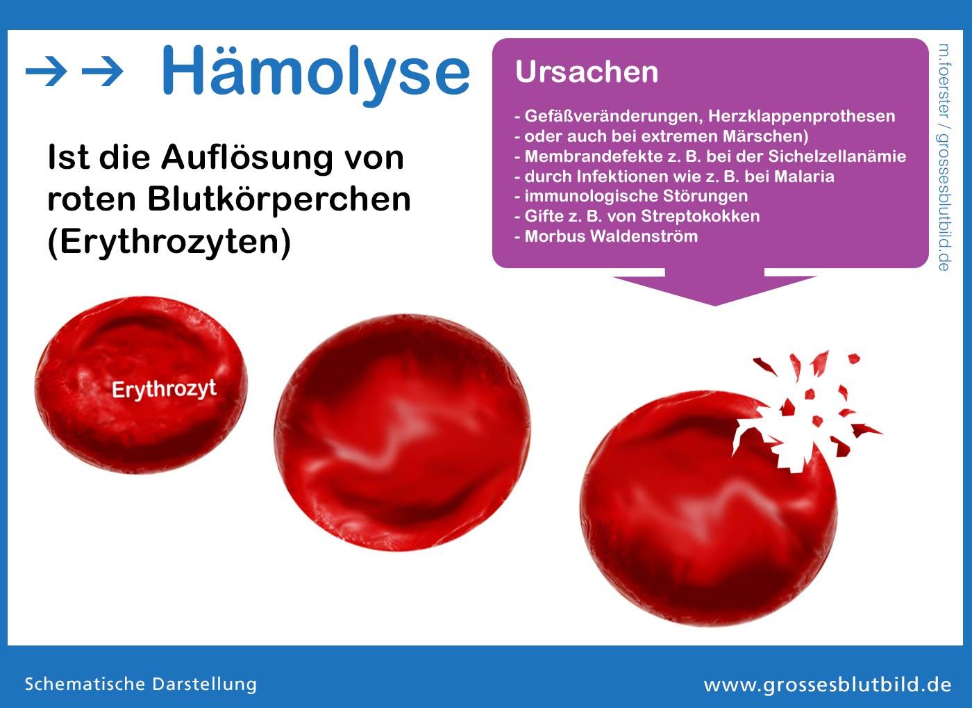 Unter Hämolyse versteht man die Auflösung roter Blutkörperchen.