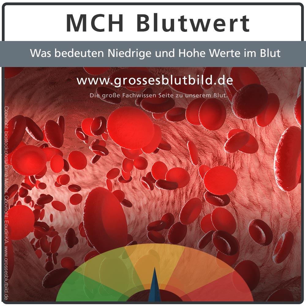 MCH Blutwerte Hämoglobinmenge