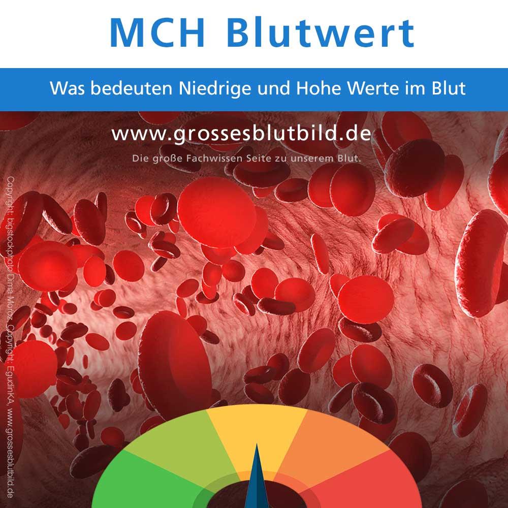 MCH Blutwerte zu niedrig oder zu hoch, die Hämoglobinmenge im Blut