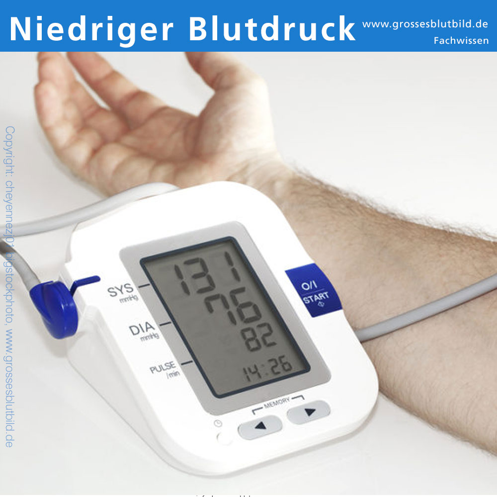 Niedriger Blutdruck Symptome