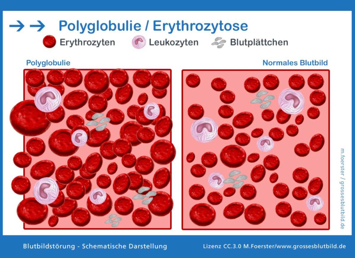 Polyglobulie Erythrozytose